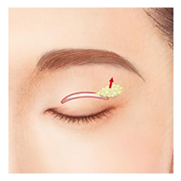 眼窩脂肪の調整