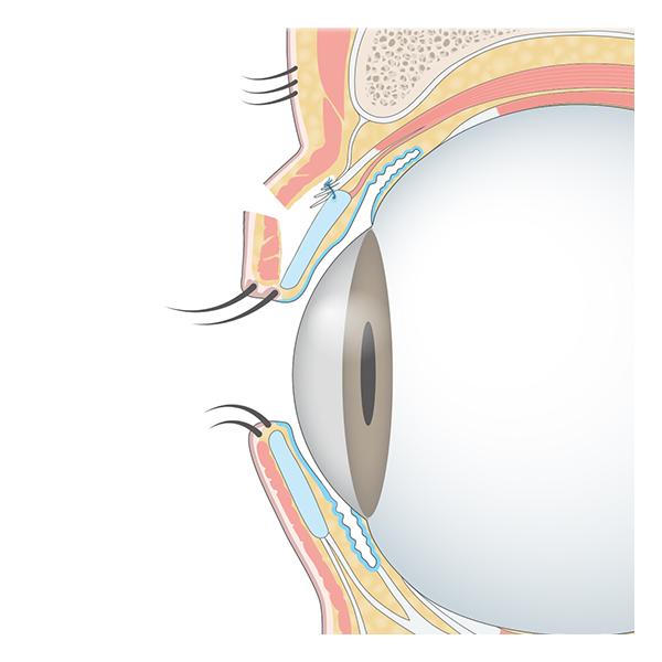 眼瞼挙筋腱膜を前転し、目の開きを大きくします。