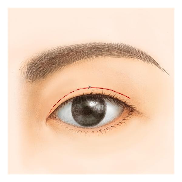 ご状態に合わせて眼窩脂肪の調整(脱脂・脂肪の移動など)を行います