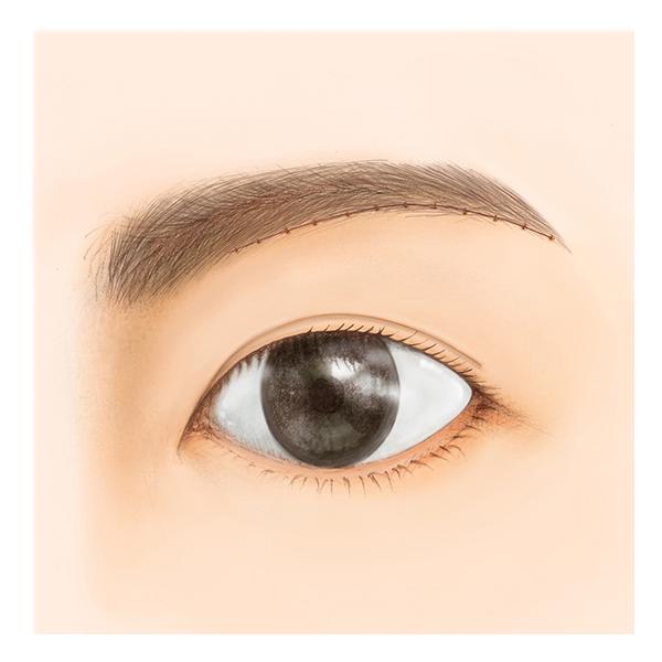 眉毛の下縁に沿って、上まぶたの皮膚を切除します。
