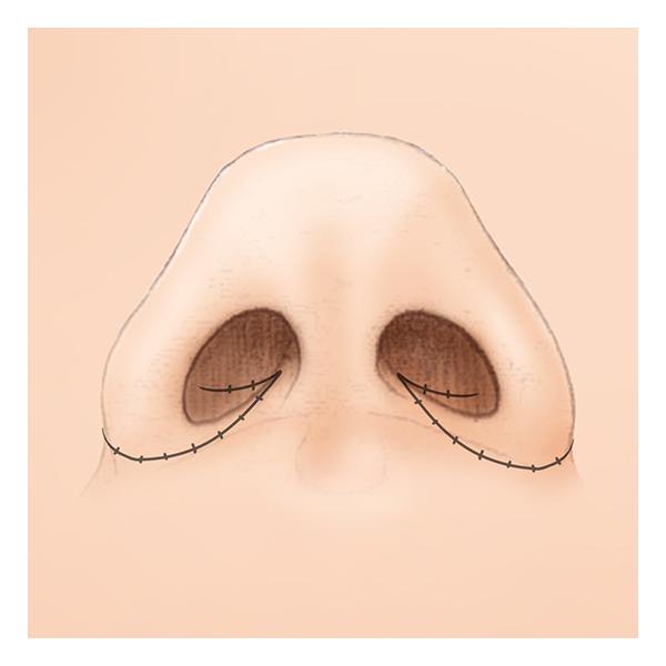 鼻翼縮小術